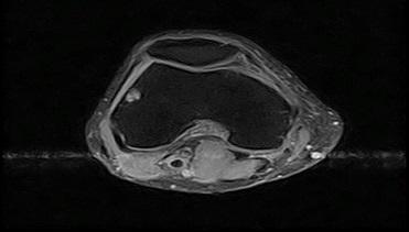 Knee MRI image